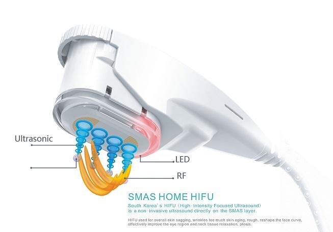 HIFU head PARA WEB